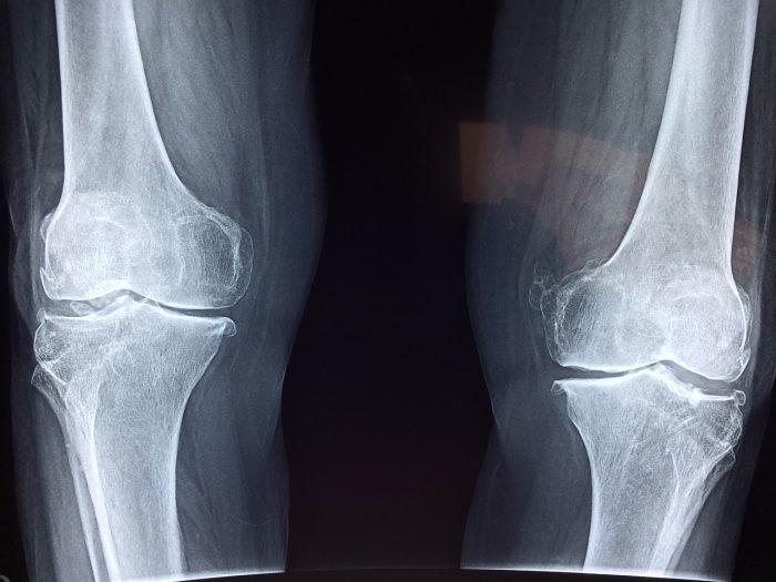 radiografía huesos piernas