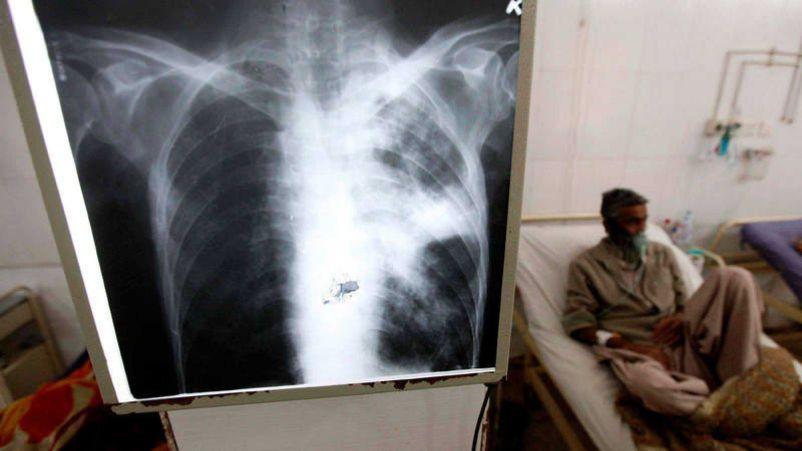 radiografia tuberculosis persona