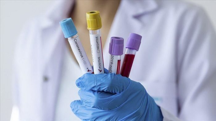muestras de sangre coronavirus
